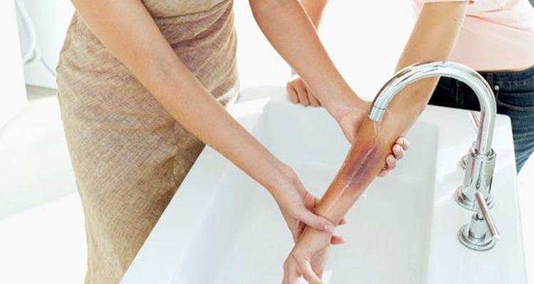 https://cuisine.nessma.tv/علاج طبيعي لحروق الزيت وتخفيف الألم في المنزل