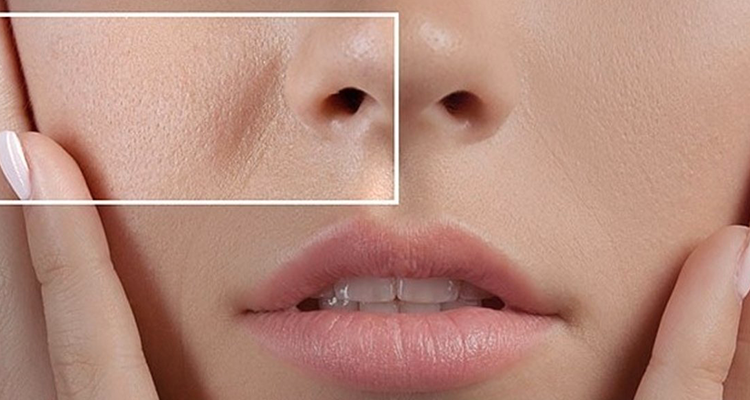 طرق طيبعية لسد مسام الوجه الواسعة