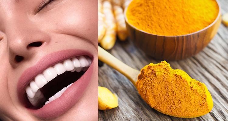 رغم لونه الأصفر: الكركم واقي للفم ومبيّض طبيعي للأسنان