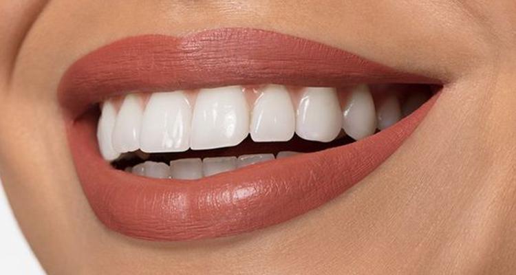 Des astuces pour blanchir les dents naturellement